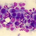 citologico tumori