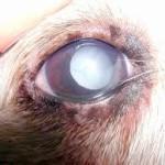 occhi diabete 2